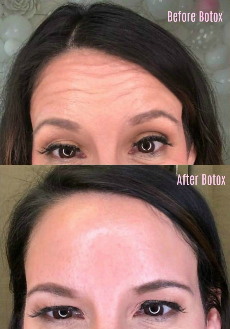 My No BS Post about Botox plus Before and After